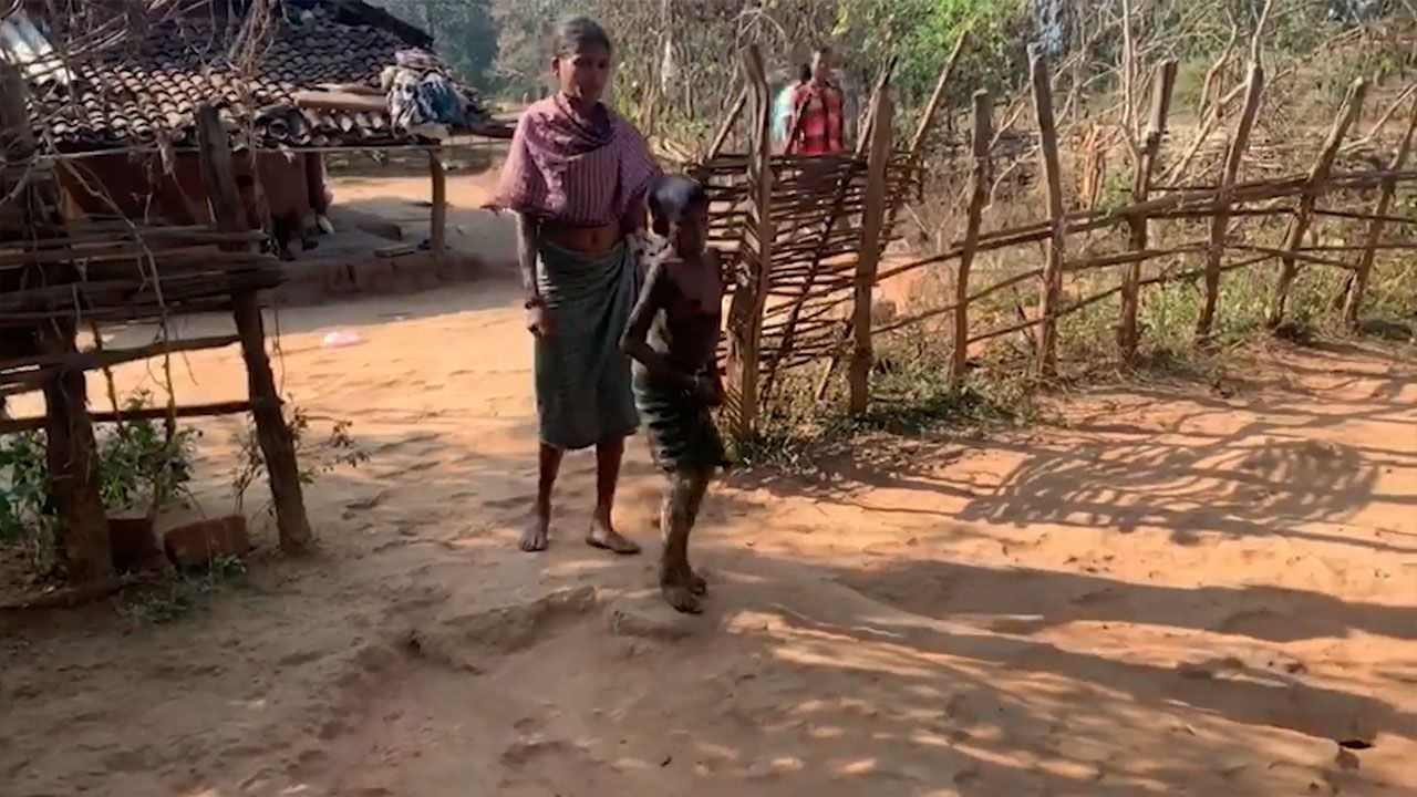 7 yaşındaki kız, her geçen gün taşa dönüşüyor - Sayfa:1