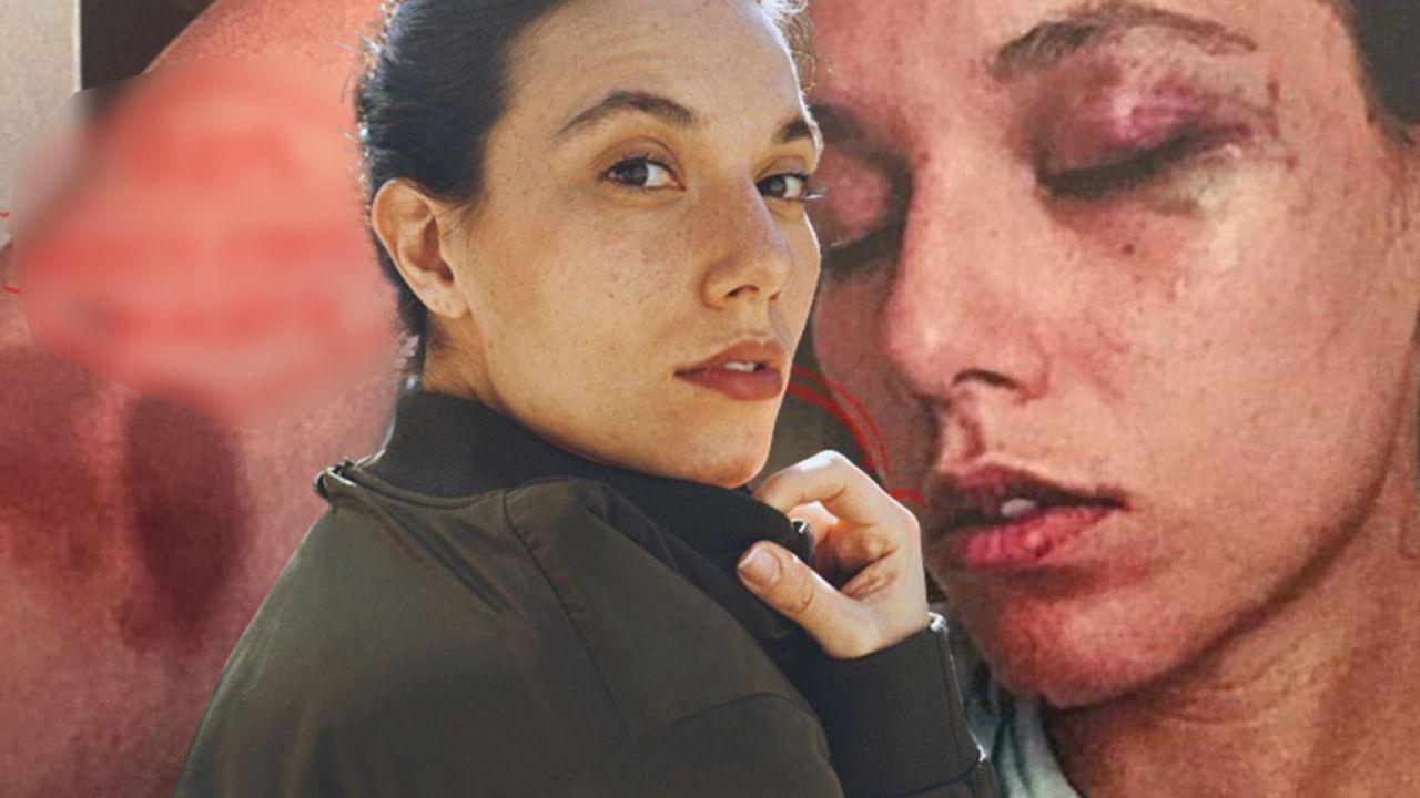 Ozan Güven için 15 yıla kadar hapis istemi! İddianamenin detayları ortaya çıktı - Sayfa:4