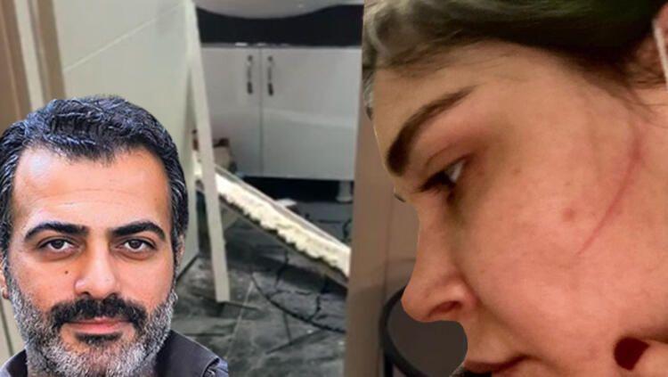 Şiddetin görüntüleri ortaya çıktı... Sermiyan Midyat ile Sevcan Yaşar arasında neler yaşandı? - Sayfa:2
