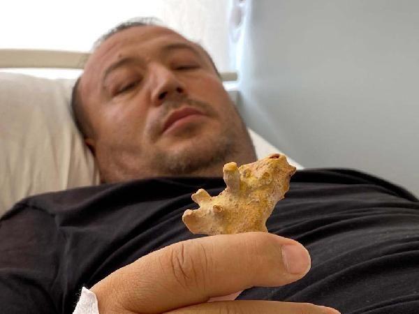 Özbek hasta'nın böbreğinden geyik boynuzu çıktı - Sayfa:1